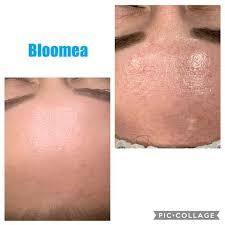 Bloomea Forehead 2