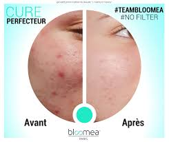 Bloomea Before & After Acne