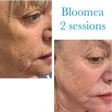 Bloomea 2 Sessions