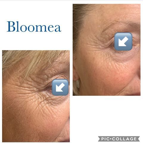 Bloomea Eyes Face Results