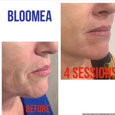 Bloomea 4 Sessions
