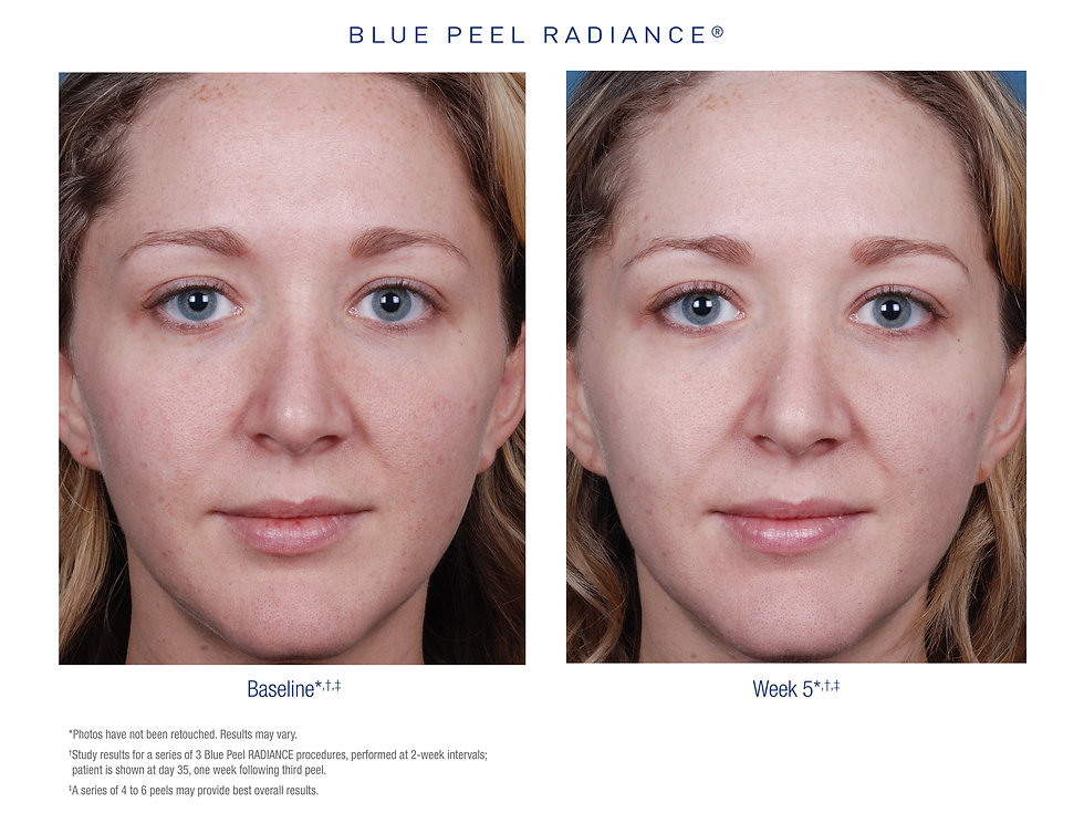 Before and after Obagi Blue Peel Radianc