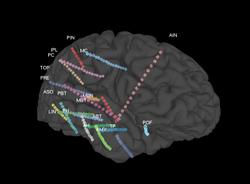 SEEG Epilepsy Study in Humans