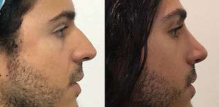 Best Male Rhinoplasty Surgeon Colombia