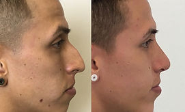Best Nose Job surgeon Colombia