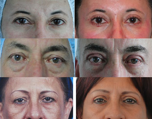 Blepharoplastyin_Colombia.png