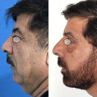 Rejuvenecimiento Facial en Colombia -Mejores cirujanos Plasticos de colombia