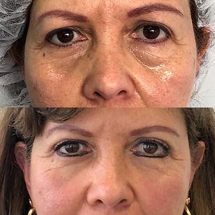 Cirugía de parpados en colombia.JPG