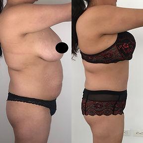 abdominoplastia en bogota.jpg