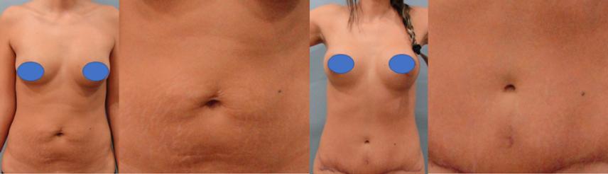 Cirugia de ombligo colombia- dr pavajeau