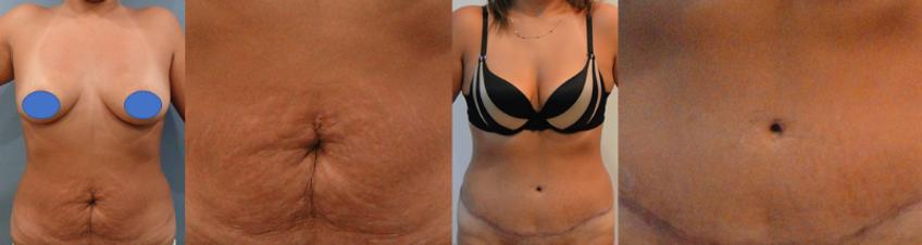 Cirugía de ombligo Colombia- Dr Pavajeau