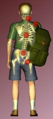 one shoulder with skeleton points.png