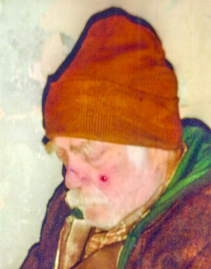 Old man with bruises and facial hair