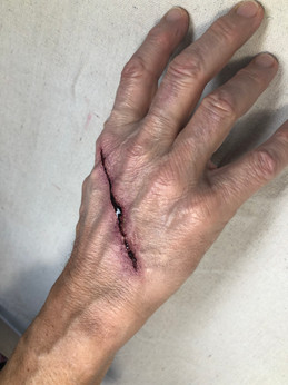 Knife wound.JPG