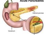 Pancreatitis in Pets