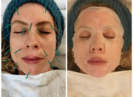 דיקור קוסמטי: טיפול עוצמתי רב-מערכתי לעור הפנים