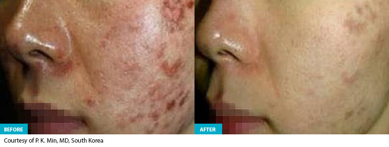 Healite Before & After 6.jpg