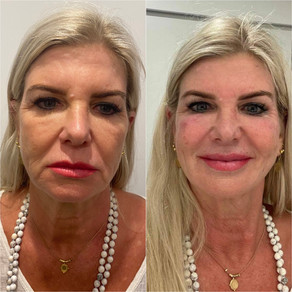 """Looking at Dermal Filler Treatment from an """"Emotional Perspective"""""""