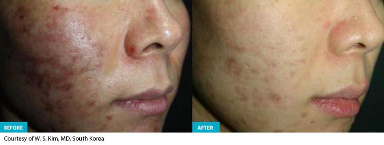 Healite Before & After 7.jpg