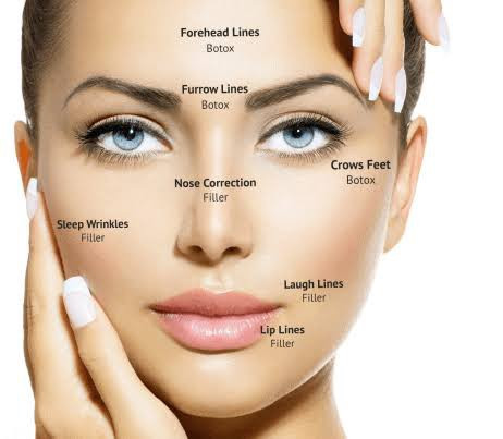 Treatment areas for cosmetic injectables