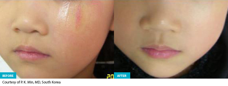Healite Before & After 4.jpg