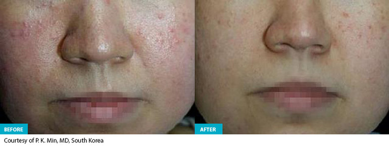 Healite Before & After 5.jpg