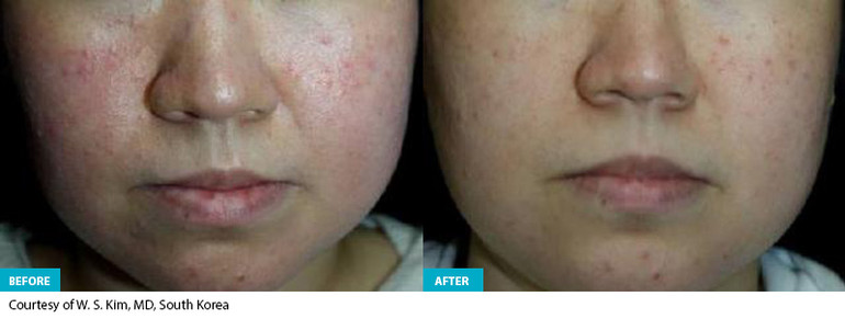 Healite Before & After 1.jpg