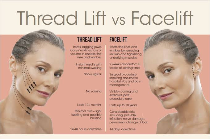 Thread Lift vs Facelift