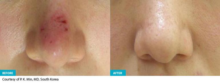 Healite Before & After 2.jpg
