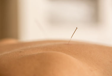 close up acupuncture needle