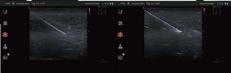 Vinno Q Needle Enhanced Image