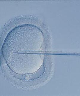 icsi-sperm-entering-egg.jpg