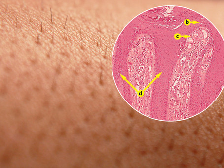 Как кожа изменяется при псориазе?