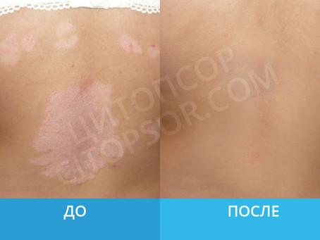 """""""Эффект обалденный"""" Анастасия"""