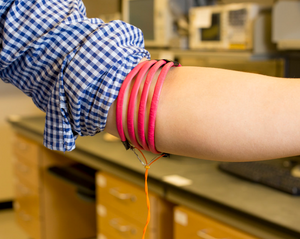 Magnetic-field-generating coils are wrapped around the arm.