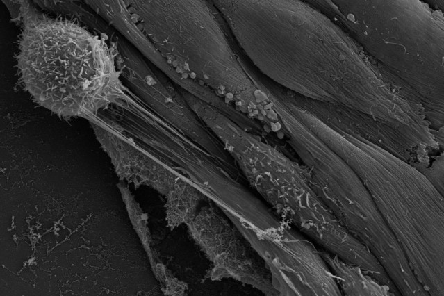 A rounded cancer cell (top left) sends out nanotubes connecting with endothelial cells. Genetic material can be injected via these nanotubes, transforming the endothelial cells and making them more hospitable to additional cancer cells.  Image: Sengupta Lab