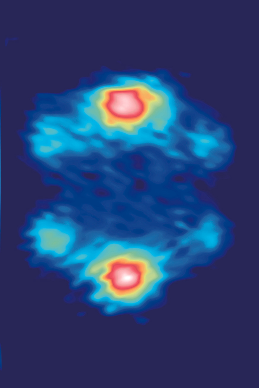 Three pairs of diffuse magnetic x-ray scattering intensities associated with three short-range zigzag states fluctuating into one another in Na2IrO3. The distinct magnetic anisotropy of each state manifests bond-directional interactions that lead to strong magnetic frustration.