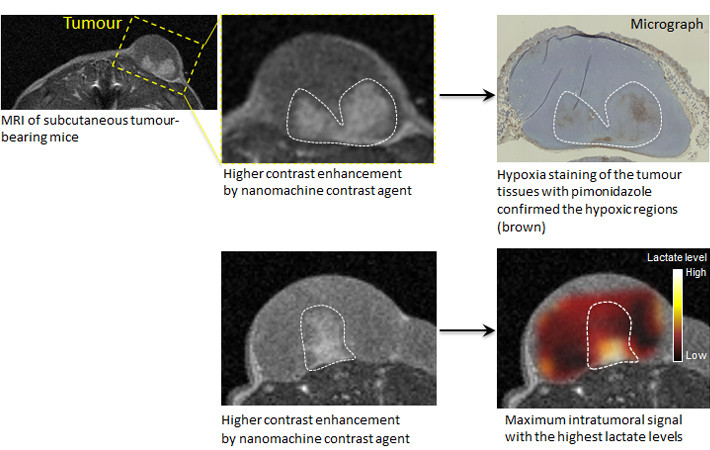 Figure 2. The nanomachine contrast agent may not only detect cancer with an MRI but also be effective in diagnosing its internal structure and malignancy. The nanomachine contrast agent produced stronger signals and made white the regions of low oxygen concentration and low pH levels thought to be especially malignant, even among cancer tissue. This effect was stronger in low-cost MRIs using lower magnetic fields. This means that MRI equipment existing at clinical sites can be used, and this new technology is expected to aid in diagnosing the degree of malignancy of cancers and their resistance to treatment.