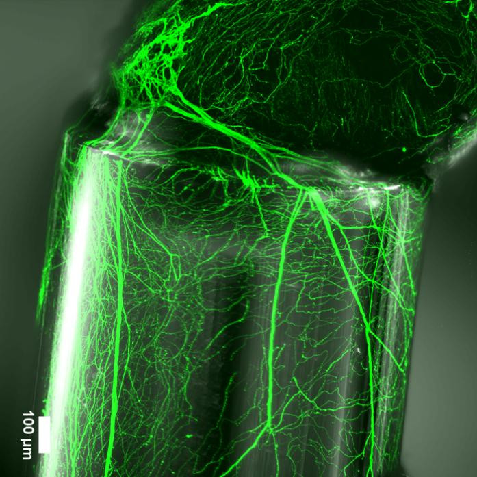 The fibers were used to guide neurites from a spinal ganglion (on the spinal nerve) @ EPFL