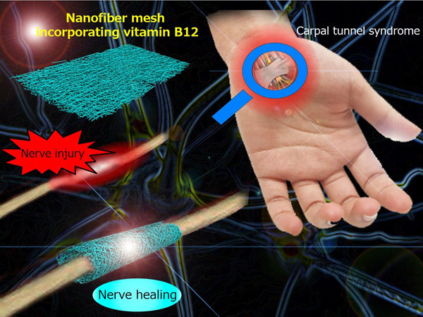 Conceptual diagram showing a nanofiber mesh incorporating vitamin B12 and its application to treat a peripheral nerve injury.