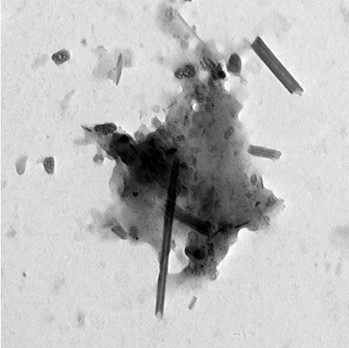 Carbon nanotubes (the long rods) and nanoparticles (the black clumps) appear in vehicle exhaust taken from the tailpipes of cars in Paris. The image is part of a study by scientists in Paris and at Rice University to analyze carbonaceous material in the lungs of asthma patients. They found that cars are a likely source of nanotubes found in the patients. Courtesy of Fathi Moussa/Paris-Saclay University