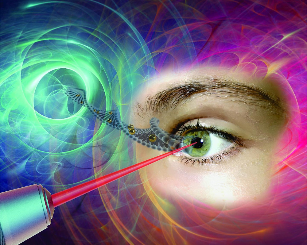 """Gold nanoparticles, which act like """"nanolenses,"""" concentrate the energy produced by the extremely short pulse of a femtosecond laser to create a nanoscale incision on the surface of the eye's retina cells. This technology, which preserves cell integrity, can be used to effectively inject drugs or genes into specific areas of the eye, offering new hope to people with glaucoma, retinitis or macular degeneration.  @ Polytechnique Montréal"""