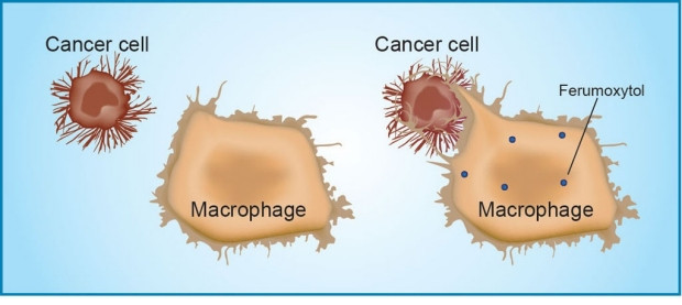 A mouse study found that ferumoxytol prompts immune cells called tumor-associated macrophages to destroy tumor cells. Amy Thomas