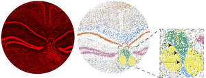 On left, mouse brain stained for nuclei; In middle: Slide-seq reconstruction of mouse brain with colors indicating various cell types; Far right: Slide-seq reveals a single-cell-layer of ependymal cells (in blue) that separates the cerebrospinal fluid from surrounding brain tissue. Courtesy of the Chen and Macosko labs.