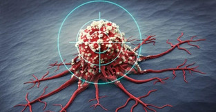 How to get more cancer-fighting nanoparticles to where they are needed