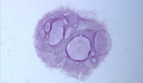 A colony of embryonic-like cells form after activation of a gene variant only found in humans, essentially reprogramming mature cells