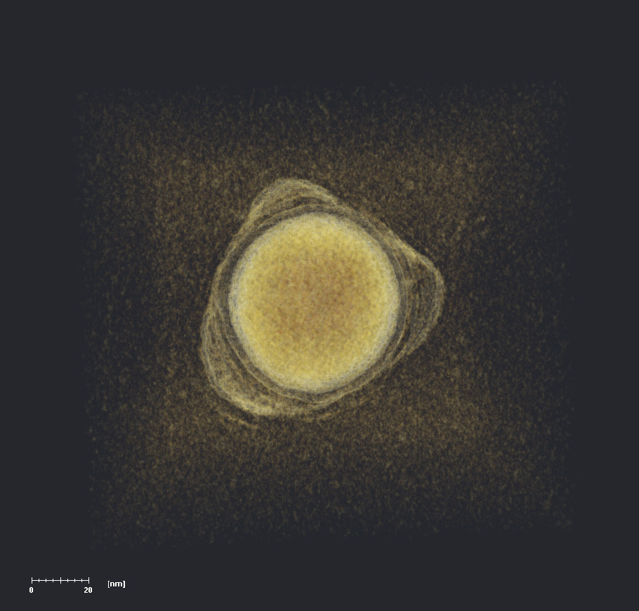 This electron tomography rendering reveals a gold nanosphere ringed by polymer patches visible as semi-transparent lumps. Capturing both the dense gold core and the subtle patch patterns presented a great challenge that leveraged both expertise and instrumentation at Brookhaven Lab's Center for Functional Nanomaterials (CFN).