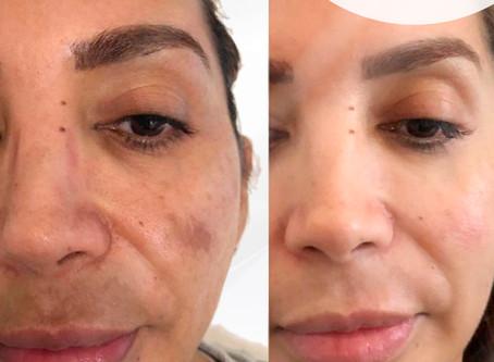 Englighten Peel Transformation