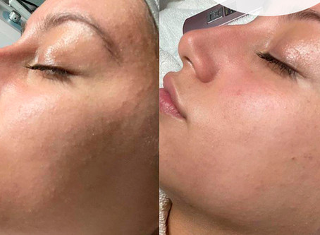 Dermaplaning by Carina