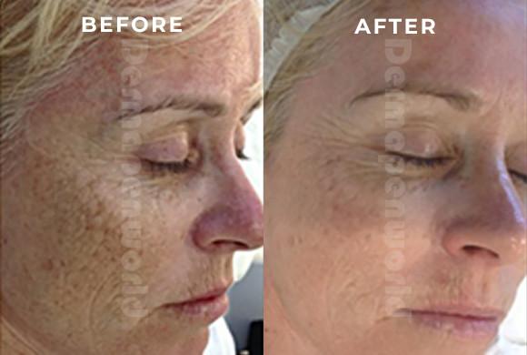 Aging/Sun Damage
